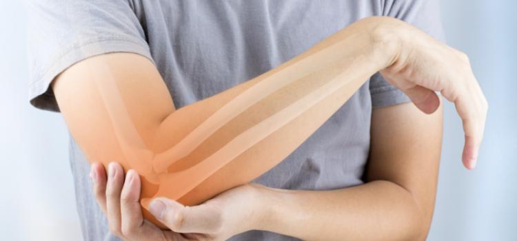Ne dozvolite da vas lažu, za osteoporozu postoji prirodni lijek (RECEPT)